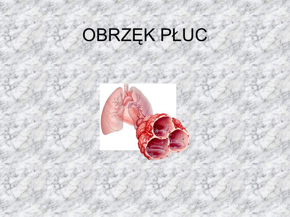 Obrzęk płuc, przemieszczenie wody osocza z domieszką białka i upostaciowanych składników krwi poza światło naczyń włosowatych krążenia płucnego (układ krążenia) do: 1) miąższu płucnego - obrzęk płuc śródmiąższowy, 2) miąższu płucnego i światła pęcherzyków płucnych - obrzęk płuc pęcherzykowy.