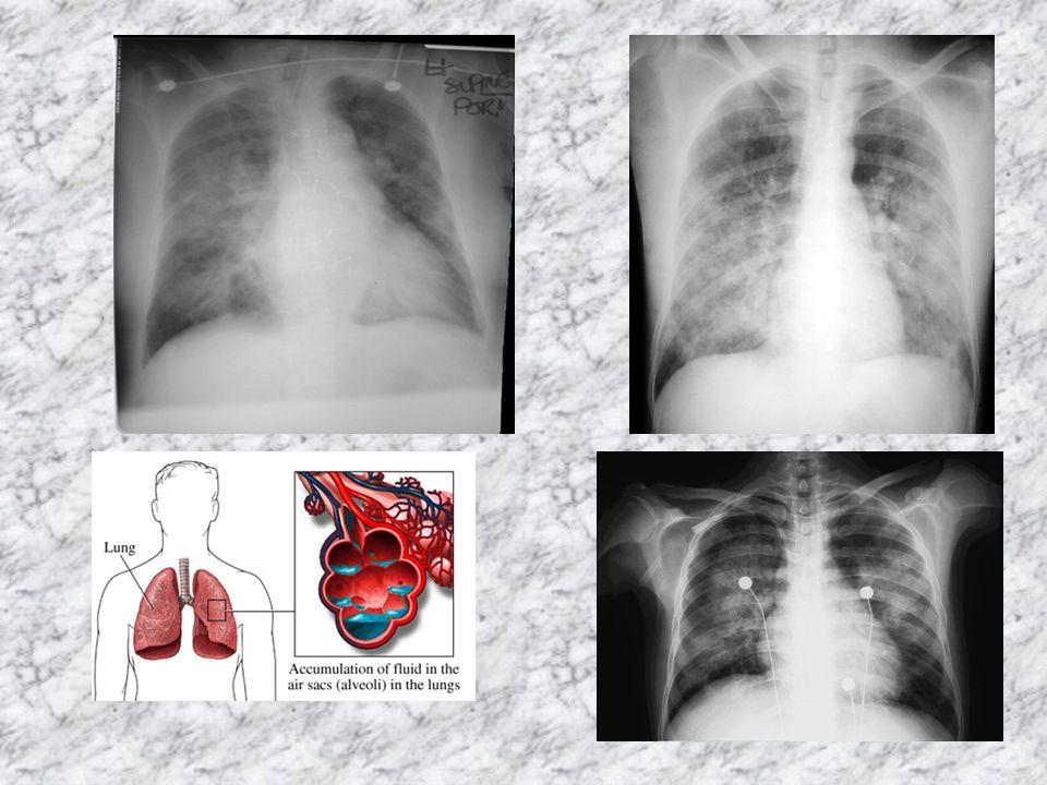 Obrzęk płuc dzielimy na: 1)Kardiogenny(inaczej sercowy) 2)Niekardiogenny(inaczej poza sercowy)