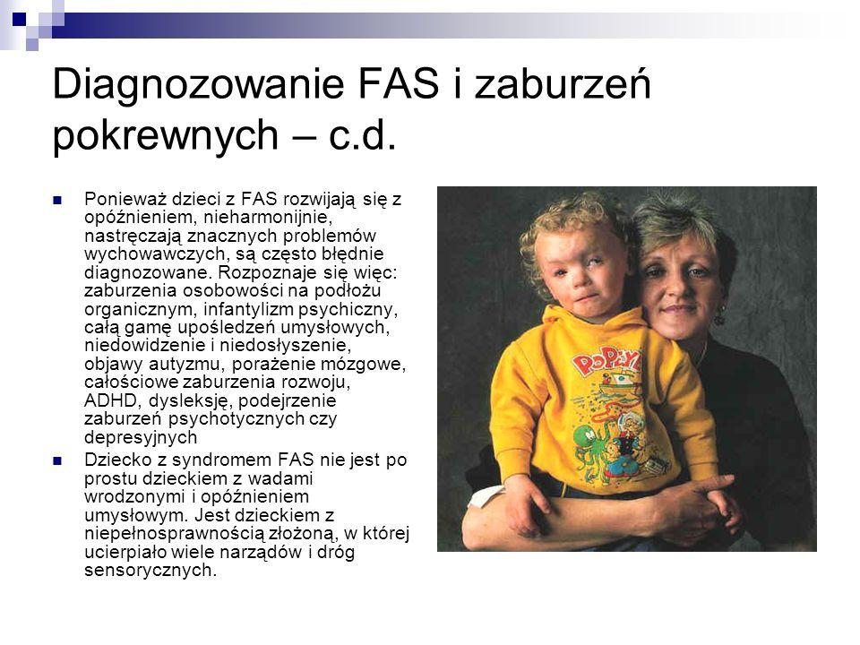Diagnozowanie FAS i zaburzeń pokrewnych – c.d. Ponieważ dzieci z FAS rozwijają się z opóźnieniem, nieharmonijnie, nastręczają znacznych problemów wych