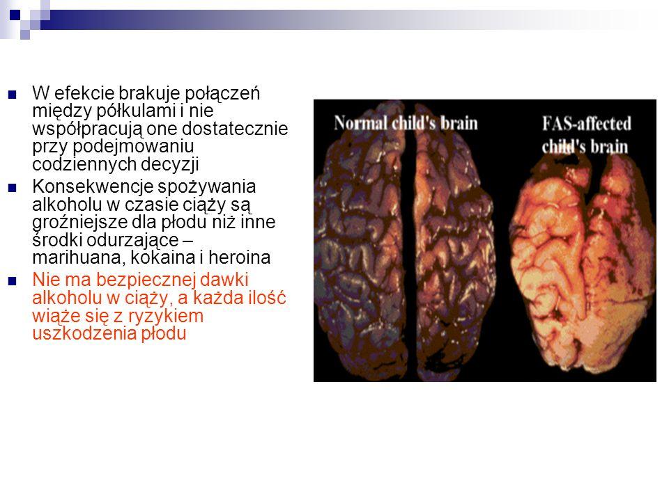 Kryteria zaburzenia Niska waga urodzeniowa W przyszłości niższy niż przeciętny wzrost Hypertonia (zbyt duże napięcie mięśniowe) lub hypotonia (zbyt niskie napięcie mięśniowe) Często wady i dysfunkcje narządów wewnętrznych: serca, wątroby, stawów, a także epilepsja Charakterystyczna twarz: słabo rozwinięta żuchwa, niskie czoło, słabo zaznaczona rynienka podnosowa, wąska górna warga, oczy niewielkie, szeroko rozstawione, z charakterystyczną fałdką w kącikach, niesymetryczne uszy.