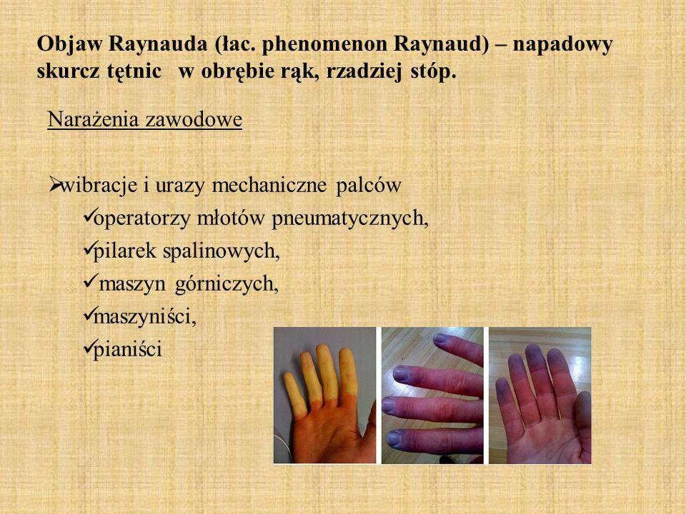 Dolegliwości wywołane wstrząsami Drgania od 40 do 300 Hz (maszyny do wykopów i odwiertów) Zespół Raynaud Rogowacenie skóry Zniesienie czucia