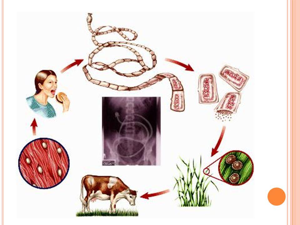 S POSOBY ZARAŻENIA Zakażenie dzików i świń następuje wskutek nawożenia pól uprawnych fekaliami ludzkimi (z szamba) i osadami z oczyszczalni ścieków.