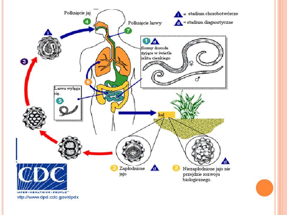 OBJAWY U chorego zarażonego glistnicą występują najróżniejsze zmiany, mianowicie: nieokreślone, wracające bóle brzucha,mdłości,sporadycznie wymioty; brak łaknienia,apatia,lub nadmierne pobudzenie ruchowe,zaburzenia snu (zgrzytanie zębami); zmiany skórne; zapalenie spojówek i obrzęk powiek; nieżyt nosa; stany skurczowe jelit; w cięższych przypadkach może dojść do niedrożności górnych dróg oddechowych.