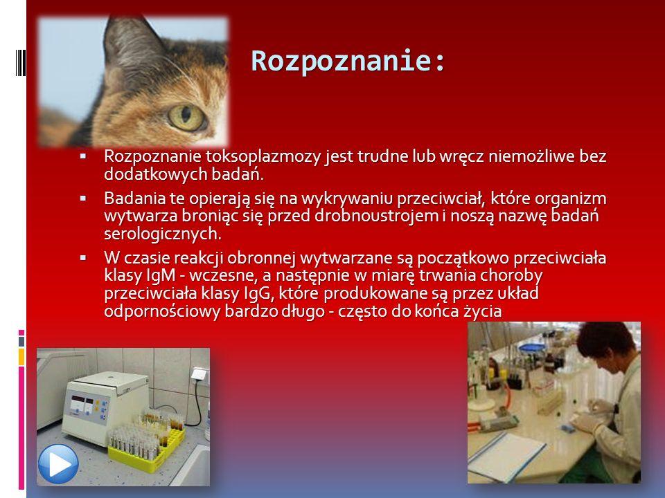Rozpoznanie: Rozpoznanie toksoplazmozy jest trudne lub wręcz niemożliwe bez dodatkowych badań.