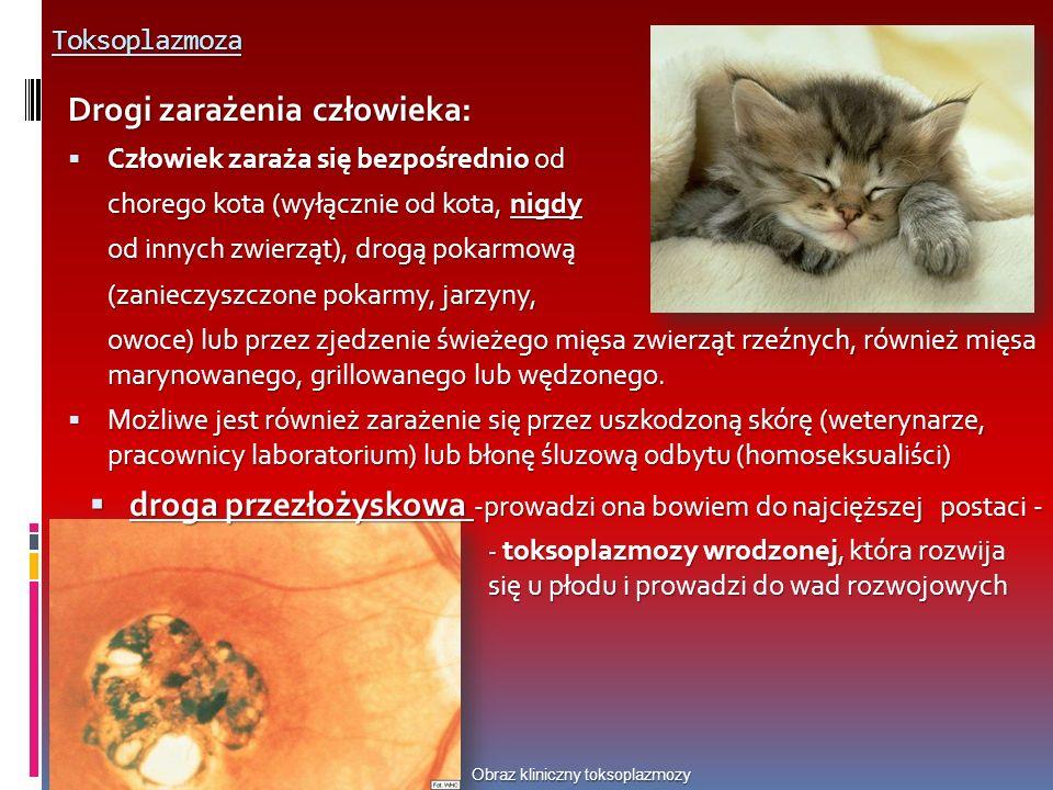 Toksoplazmoza Obraz kliniczny toksoplazmozy Drogi zarażenia człowieka: Człowiek zaraża się bezpośrednio od Człowiek zaraża się bezpośrednio od chorego kota (wyłącznie od kota, nigdy od innych zwierząt), drogą pokarmową (zanieczyszczone pokarmy, jarzyny, owoce) lub przez zjedzenie świeżego mięsa zwierząt rzeźnych, również mięsa marynowanego, grillowanego lub wędzonego.