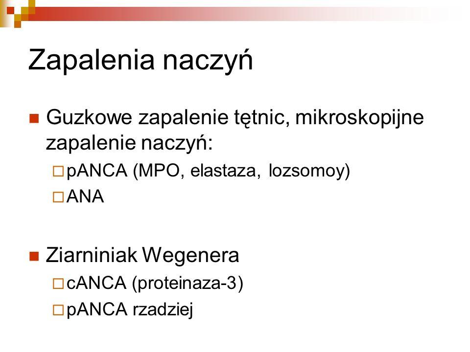 Zapalenia naczyń Guzkowe zapalenie tętnic, mikroskopijne zapalenie naczyń: pANCA (MPO, elastaza, lozsomoy) ANA Ziarniniak Wegenera cANCA (proteinaza-3