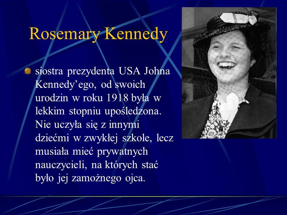 Rosemary Kennedy siostra prezydenta USA Johna Kennedyego, od swoich urodzin w roku 1918 była w lekkim stopniu upośledzona. Nie uczyła się z innymi dzi