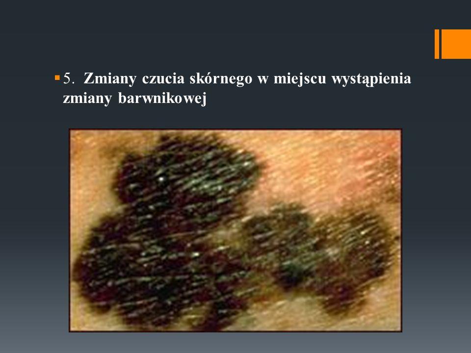 5. Zmiany czucia skórnego w miejscu wystąpienia zmiany barwnikowej