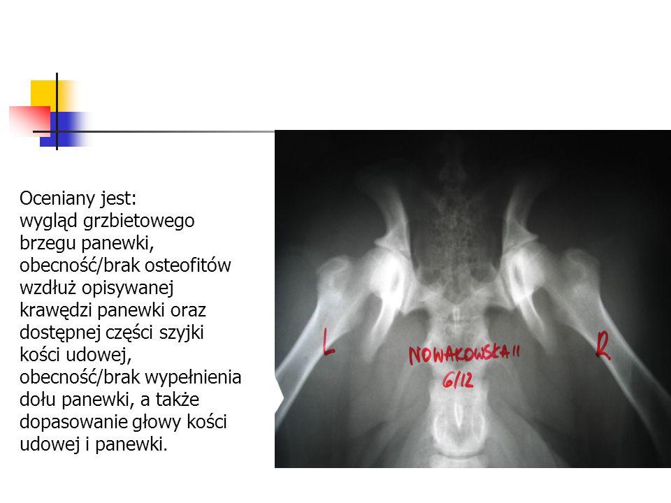Oceniany jest: wygląd grzbietowego brzegu panewki, obecność/brak osteofitów wzdłuż opisywanej krawędzi panewki oraz dostępnej części szyjki kości udow