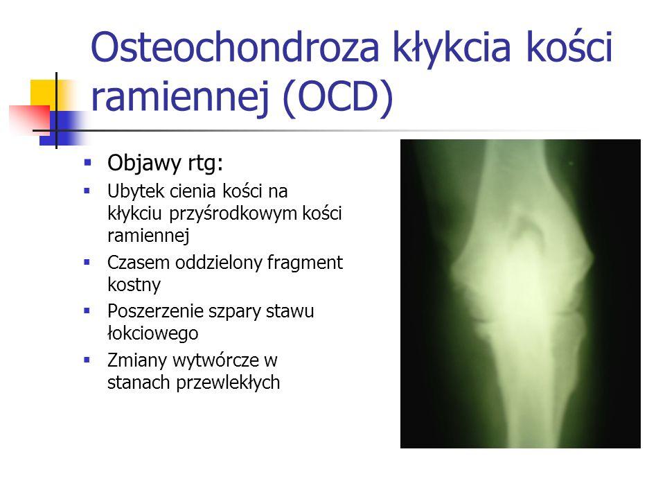 Osteochondroza kłykcia kości ramiennej (OCD) Objawy rtg: Ubytek cienia kości na kłykciu przyśrodkowym kości ramiennej Czasem oddzielony fragment kostn