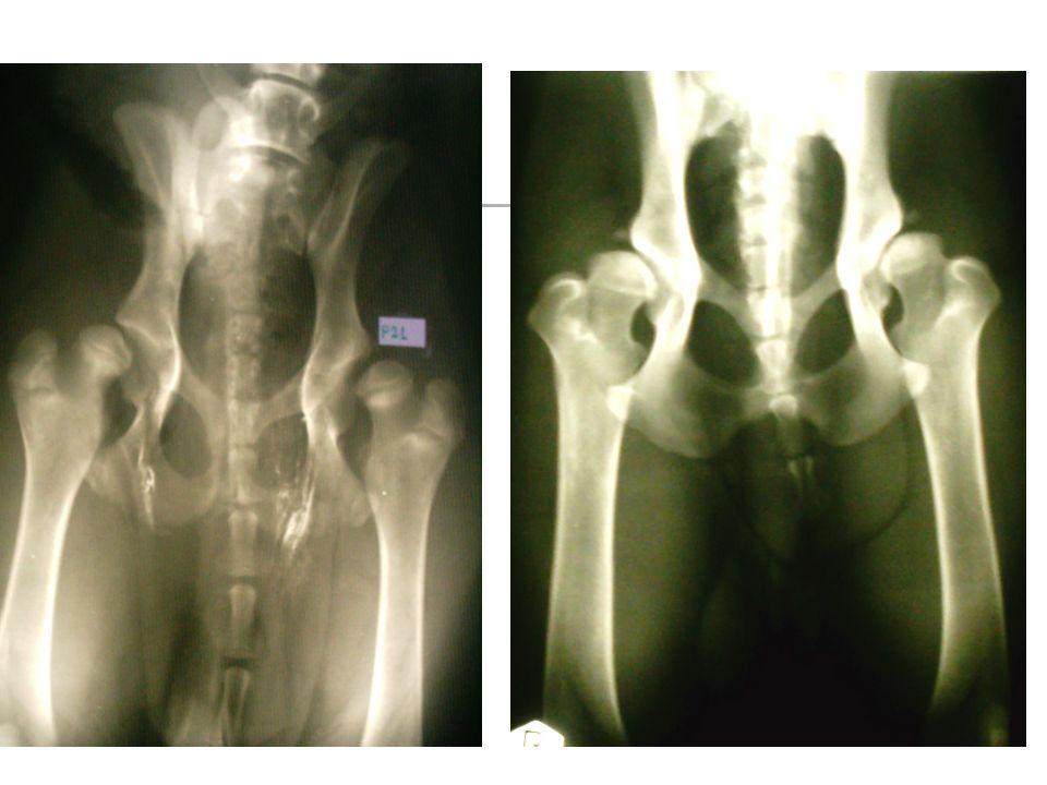 Osteochondroza kłykcia kości ramiennej (OCD) Objawy rtg: Ubytek cienia kości na kłykciu przyśrodkowym kości ramiennej Czasem oddzielony fragment kostny Poszerzenie szpary stawu łokciowego Zmiany wytwórcze w stanach przewlekłych