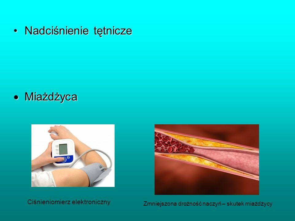 Nadciśnienie tętniczeNadciśnienie tętnicze Miażdżyca Miażdżyca Ciśnieniomierz elektroniczny Zmniejszona drożność naczyń – skutek miażdżycy