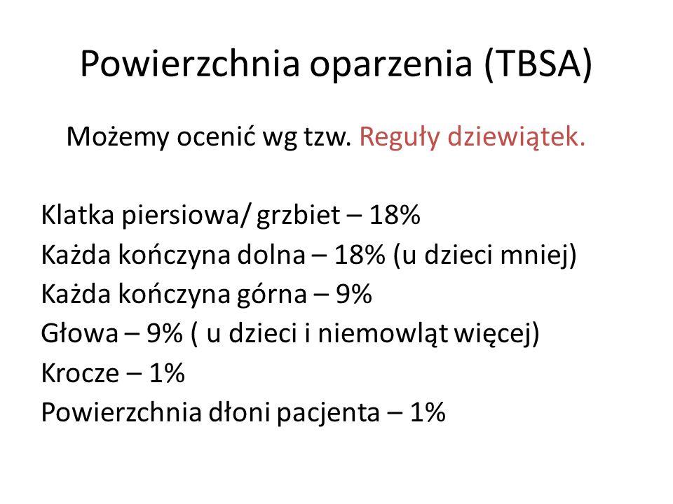 Powierzchnia oparzenia (TBSA) Możemy ocenić wg tzw. Reguły dziewiątek. Klatka piersiowa/ grzbiet – 18% Każda kończyna dolna – 18% (u dzieci mniej) Każ