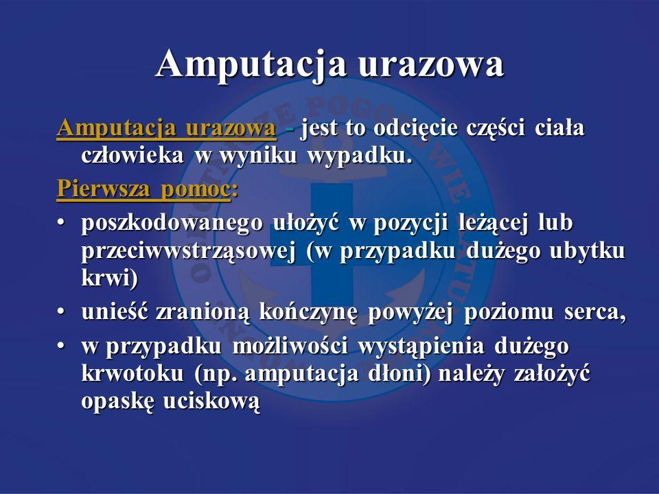 Amputacja urazowa Amputacja urazowa - jest to odcięcie części ciała człowieka w wyniku wypadku.