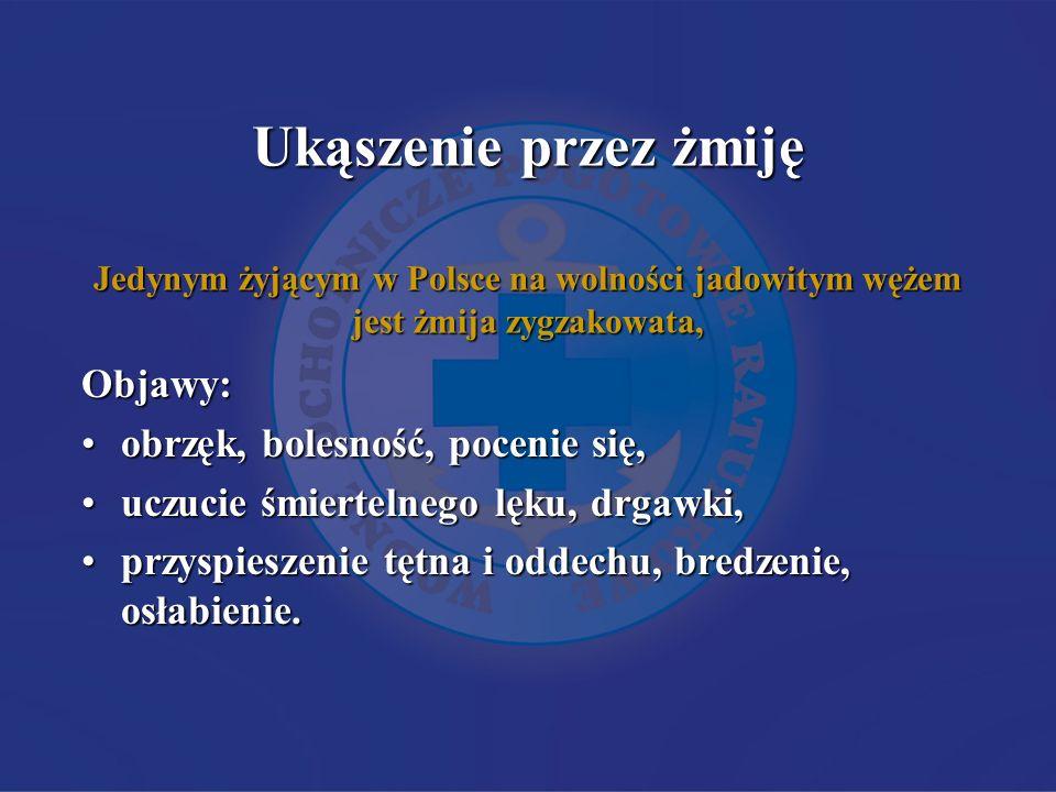 Ukąszenie przez żmiję Jedynym żyjącym w Polsce na wolności jadowitym wężem jest żmija zygzakowata, Objawy: obrzęk, bolesność, pocenie się,obrzęk, bole