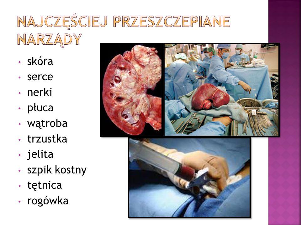 skóra serce nerki płuca wątroba trzustka jelita szpik kostny tętnica rogówka