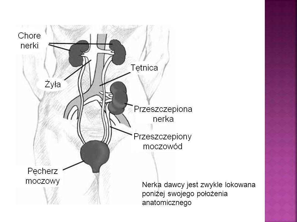 Nerka dawcy jest zwykle lokowana poniżej swojego położenia anatomicznego