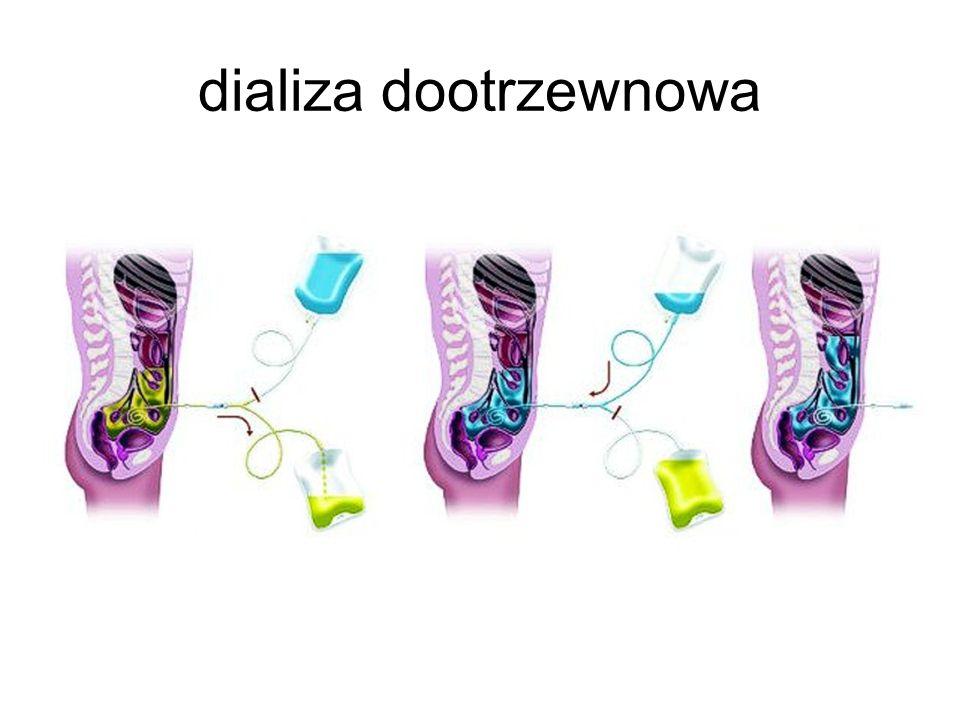 dializa dootrzewnowa