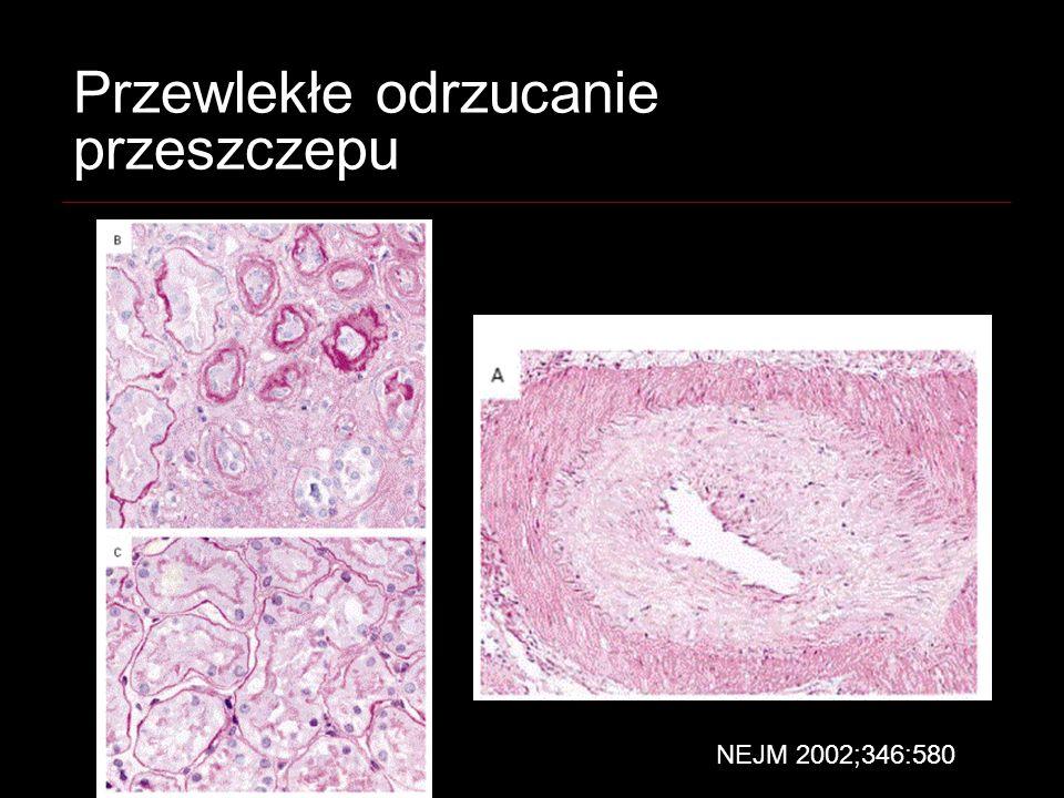 Przewlekłe odrzucanie przeszczepu NEJM 2002;346:580