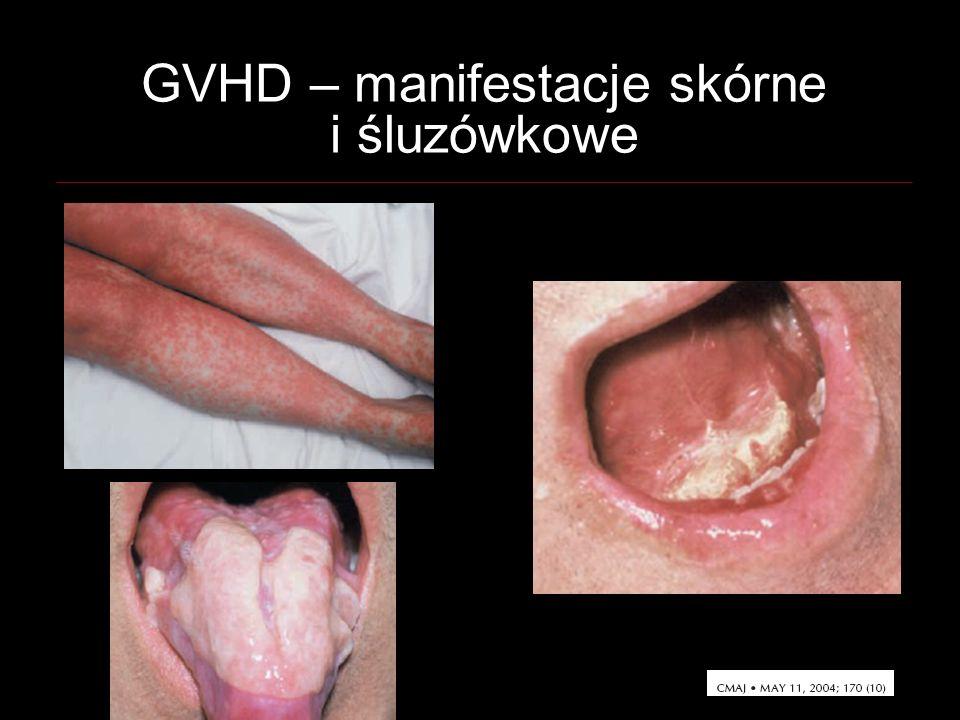 GVHD – manifestacje skórne i śluzówkowe