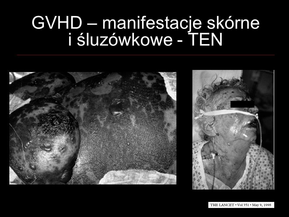GVHD – manifestacje skórne i śluzówkowe - TEN