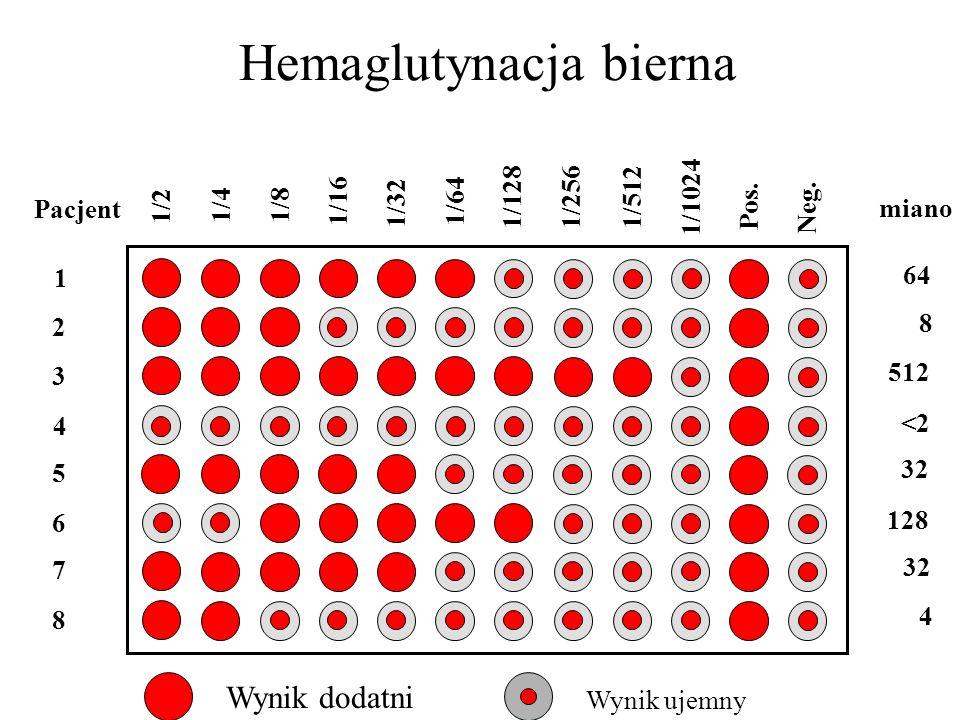 Hemaglutynacja bierna 1/2 1/4 1/8 1/16 1/32 1/64 1/128 1/256 1/512 1/1024 Pos. Neg. miano 64 8 512 <2 32 128 32 4 Pacjent 1 2 3 4 5 6 7 8 Wynik dodatn