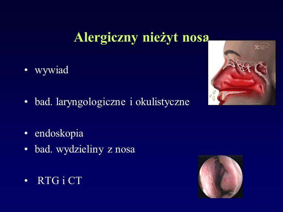 Alergiczny nieżyt nosa wywiad bad. laryngologiczne i okulistyczne endoskopia bad. wydzieliny z nosa RTG i CT