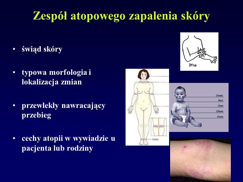 Zespół atopowego zapalenia skóry świąd skóry typowa morfologia i lokalizacja zmian przewlekły nawracający przebieg cechy atopii w wywiadzie u pacjenta