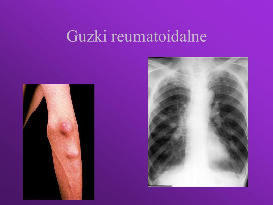 Czynnik reumatoidalny