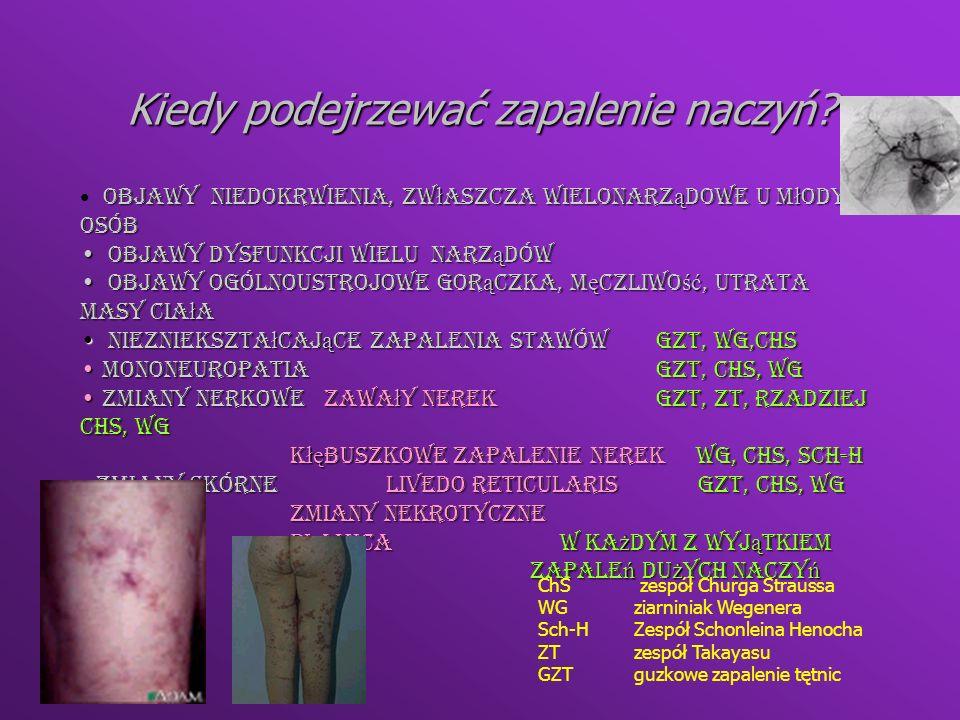 Zmiany nekrotyczne Livedo reticularis Plamica Ziarniniak