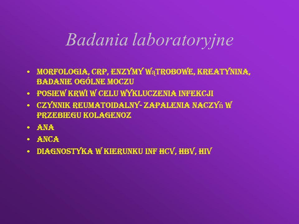 ANCA- przeciwciała przeciw cytoplazmie neutrofilów c-ANCA p-ANCA Przeciw proteinazie 3 90% pacjentów z ziarniniakiem Wegenera Przeciw metyloproteinazie w zespole Churga Straussa mikroskopowe zapalenie naczyń kłębuszkowe zapelenia nerek