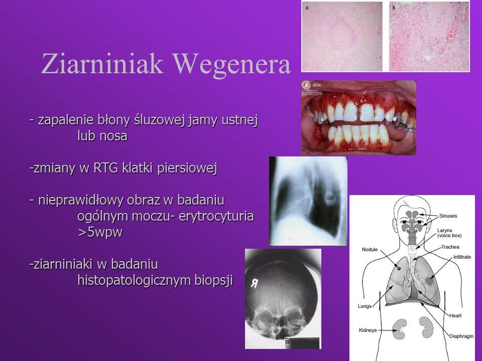 Ziarniniak Wegenera - zapalenie błony śluzowej jamy ustnej lub nosa -zmiany w RTG klatki piersiowej - nieprawidłowy obraz w badaniu ogólnym moczu- ery