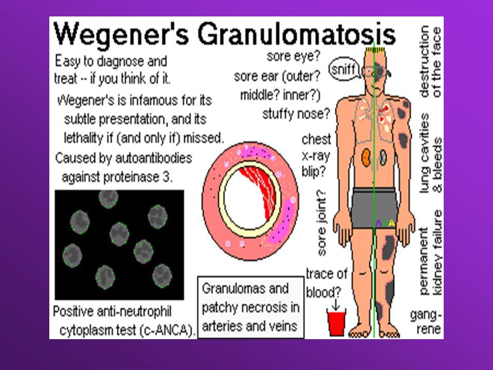 Zespół Schonleina -Henocha - wybroczyny na skórze podczas palpacji -wiek<20 lat -angina abdominalis -ziarniniaki w ścianie naczyń