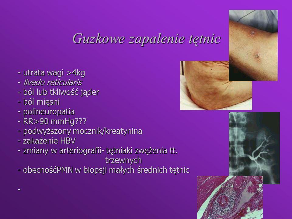 Guzkowe zapalenie tętnic - utrata wagi >4kg - livedo reticularis - ból lub tkliwość jąder - ból mięsni - polineuropatia - RR>90 mmHg??? - podwyższony