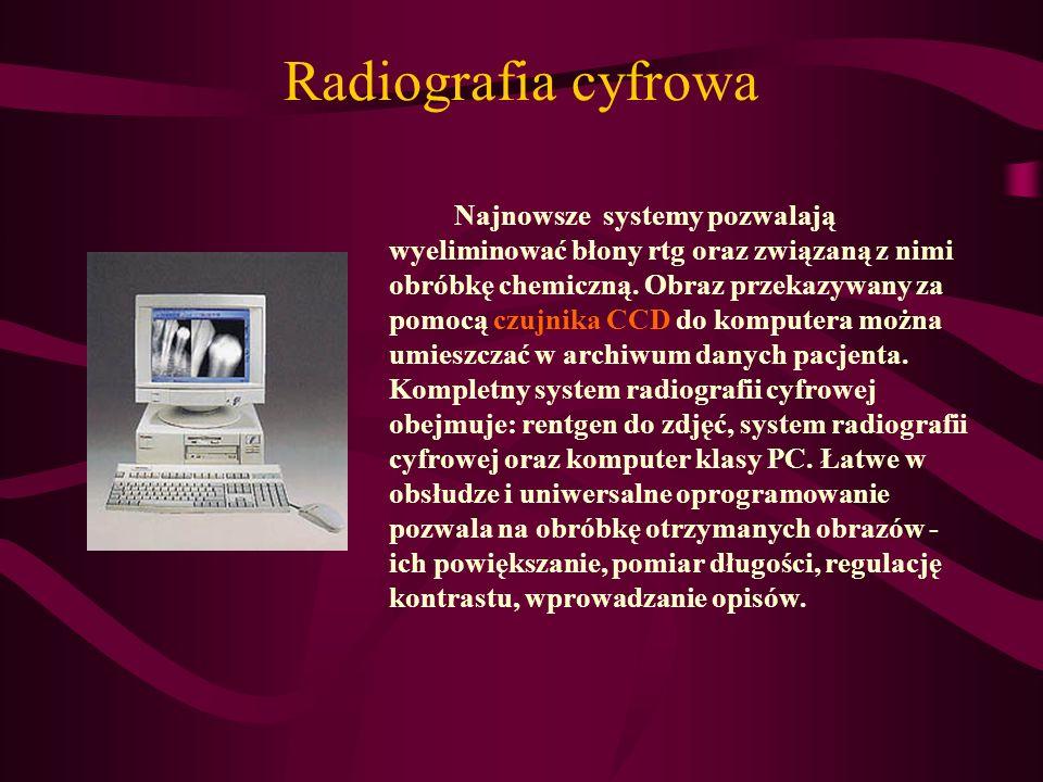 Radiografia cyfrowa Najnowsze systemy pozwalają wyeliminować błony rtg oraz związaną z nimi obróbkę chemiczną. Obraz przekazywany za pomocą czujnika C