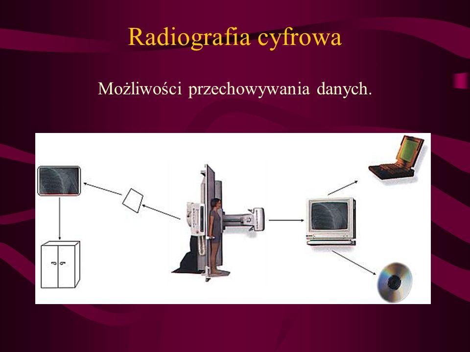 Radiografia cyfrowa Możliwości przechowywania danych.