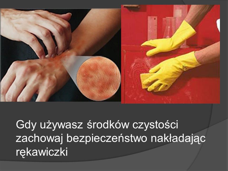 Gdy używasz środków czystości zachowaj bezpieczeństwo nakładając rękawiczki