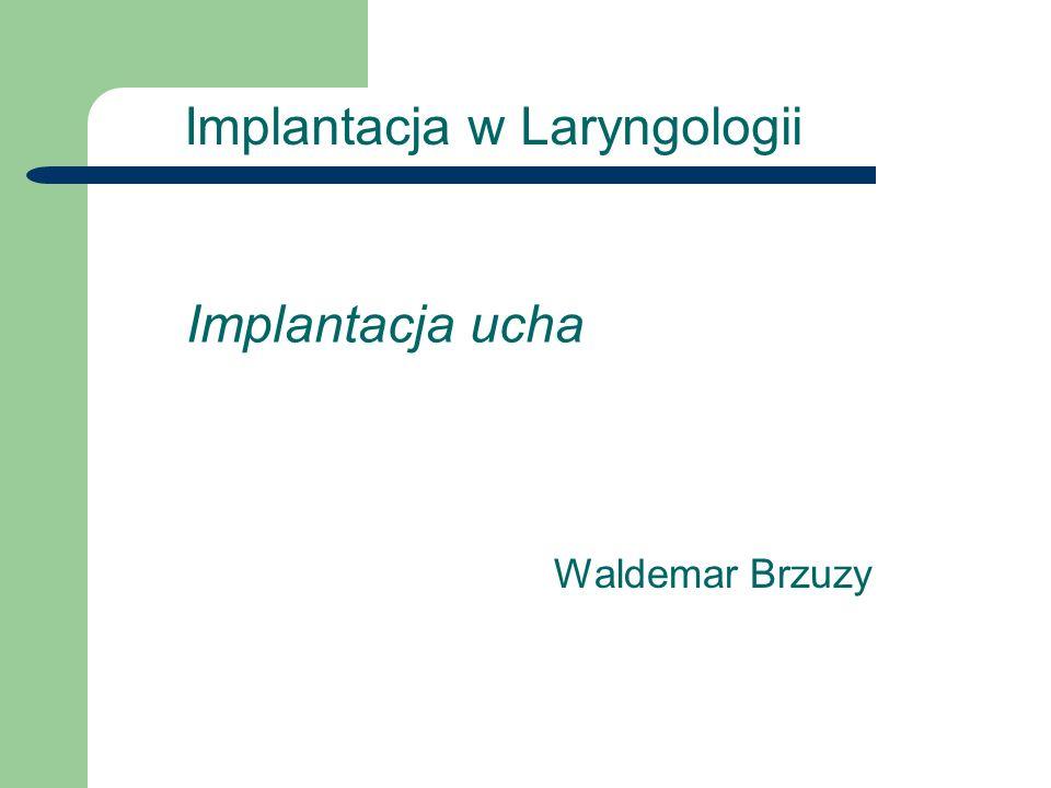 Waldemar Brzuzy Aparatura Biomedyczna Budowa implantu ślimakowego