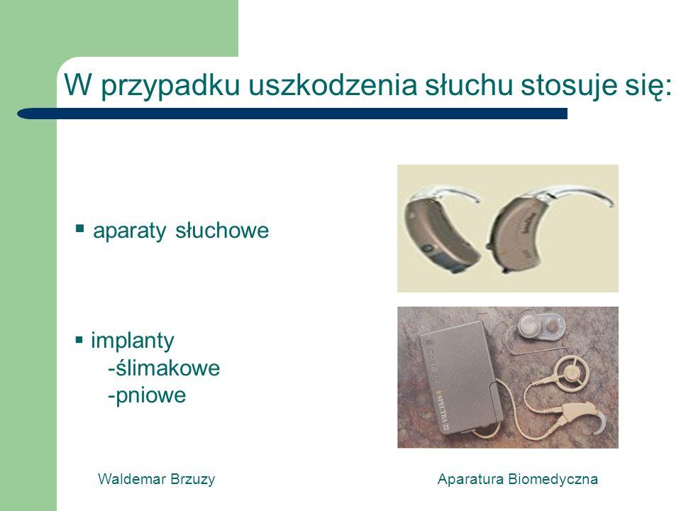 Waldemar Brzuzy Aparatura Biomedyczna W przypadku uszkodzenia słuchu stosuje się: aparaty słuchowe implanty -ślimakowe -pniowe