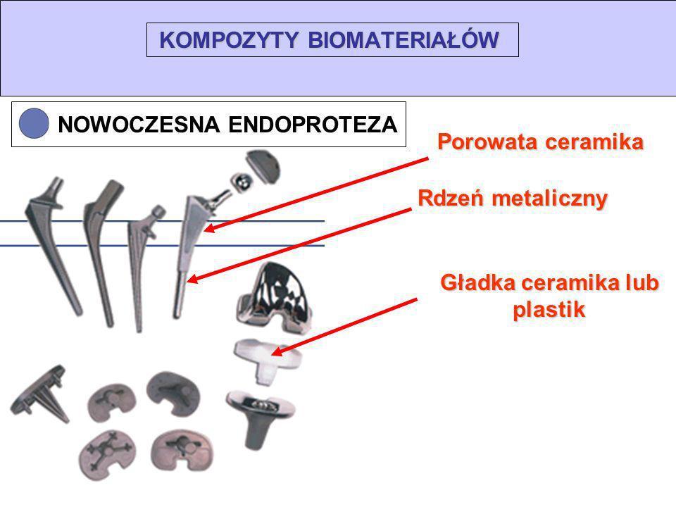 KOMPOZYTY BIOMATERIAŁÓW Rdzeń metaliczny Porowata ceramika Gładka ceramika lub plastik NOWOCZESNA ENDOPROTEZA