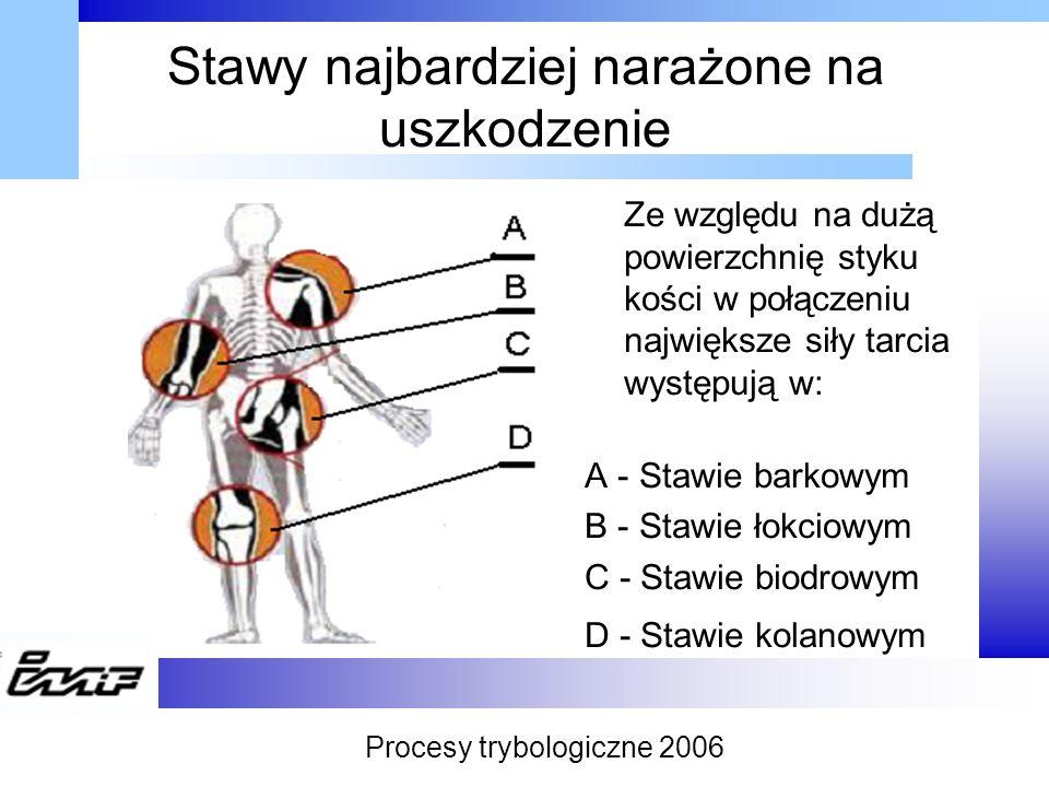Stawy najbardziej narażone na uszkodzenie Ze względu na dużą powierzchnię styku kości w połączeniu największe siły tarcia występują w: A - Stawie bark