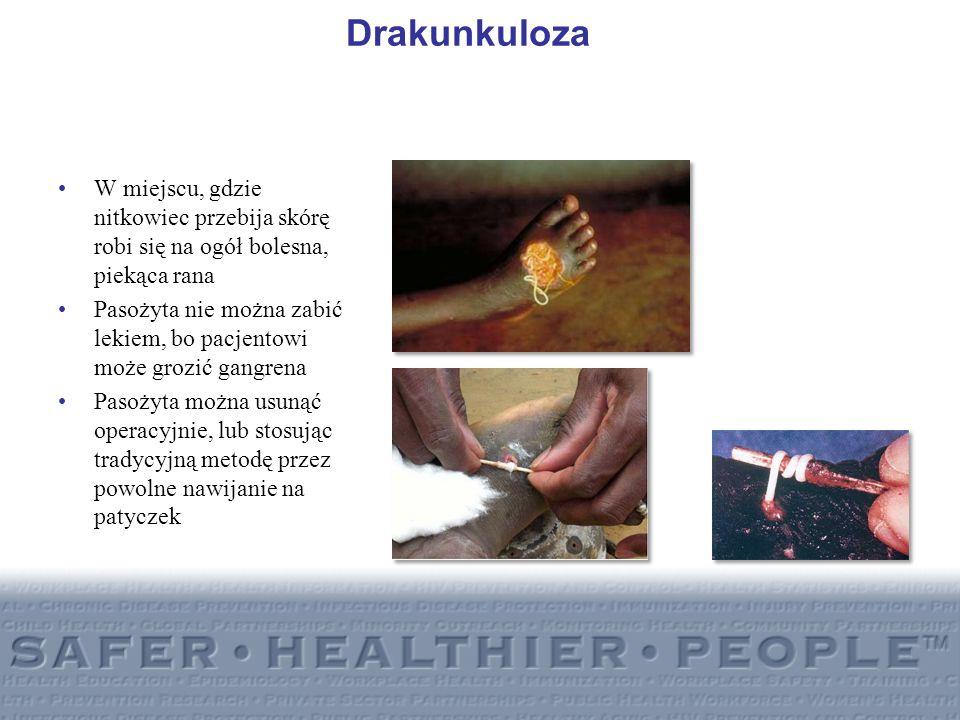 Drakunkuloza W miejscu, gdzie nitkowiec przebija skórę robi się na ogół bolesna, piekąca rana Pasożyta nie można zabić lekiem, bo pacjentowi może groz