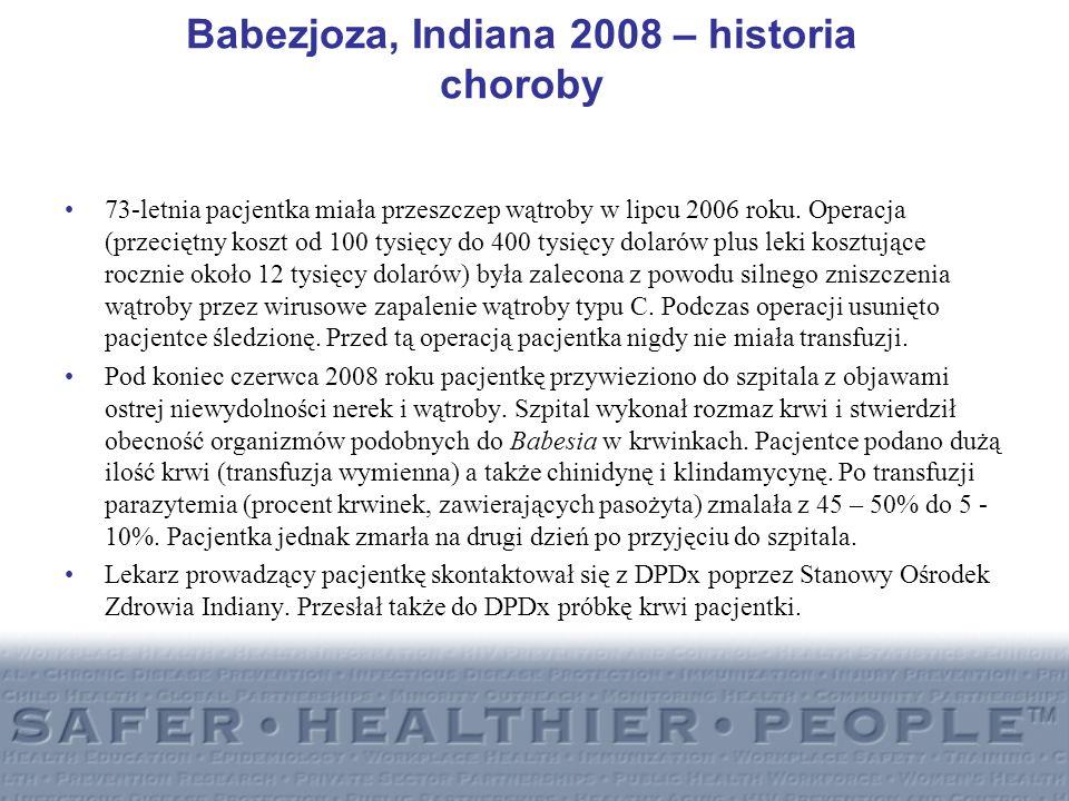 Babezjoza, Indiana 2008 – historia choroby 73-letnia pacjentka miała przeszczep wątroby w lipcu 2006 roku. Operacja (przeciętny koszt od 100 tysięcy d