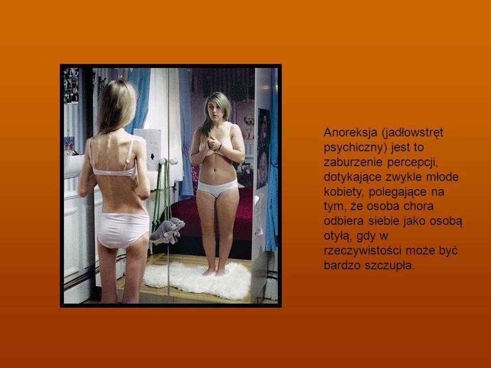 Anoreksja (jadłowstręt psychiczny) jest to zaburzenie percepcji, dotykające zwykle młode kobiety, polegające na tym, że osoba chora odbiera siebie jak