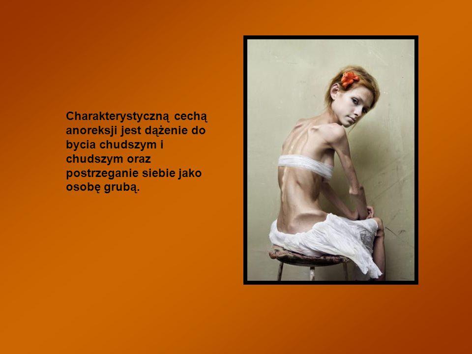 10% osób chorych na anoreksję umiera.