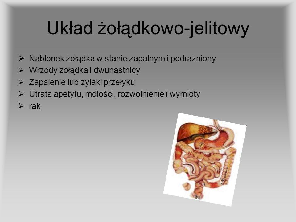 Układ żołądkowo-jelitowy Nabłonek żołądka w stanie zapalnym i podrażniony Wrzody żołądka i dwunastnicy Zapalenie lub żylaki przełyku Utrata apetytu, m