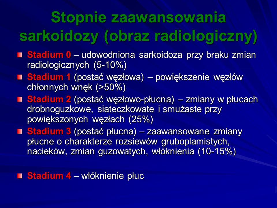 Stopnie zaawansowania sarkoidozy (obraz radiologiczny) Stadium 0 – udowodniona sarkoidoza przy braku zmian radiologicznych (5-10%) Stadium 1 (postać w