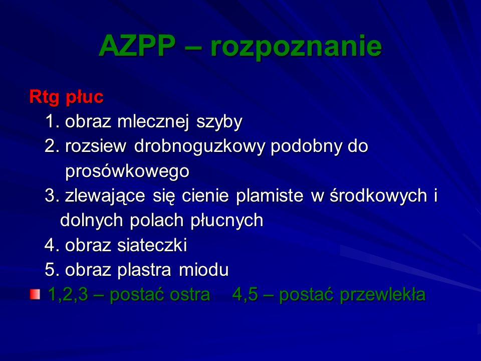 AZPP – rozpoznanie Rtg płuc 1. obraz mlecznej szyby 1. obraz mlecznej szyby 2. rozsiew drobnoguzkowy podobny do 2. rozsiew drobnoguzkowy podobny do pr