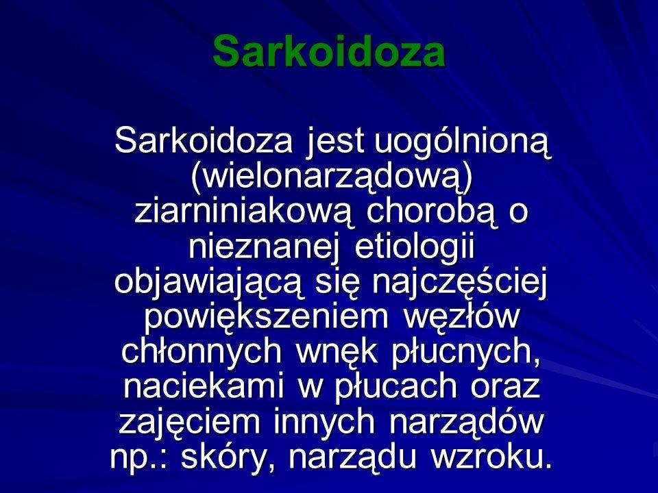 Sarkoidoza Sarkoidoza jest uogólnioną (wielonarządową) ziarniniakową chorobą o nieznanej etiologii objawiającą się najczęściej powiększeniem węzłów ch