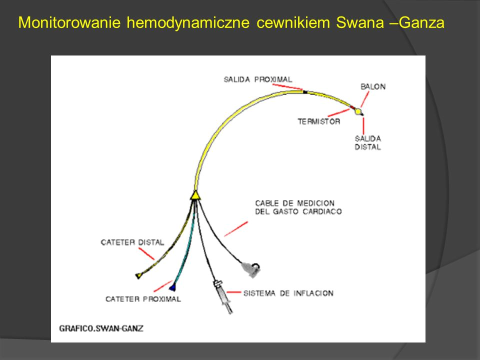 Monitorowanie hemodynamiczne cewnikiem Swana –Ganza
